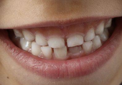 Odontología Preventi...